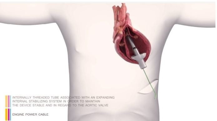 FineHeart Completes First Successful Chronic In-Vivo Study of its ICOMS Device