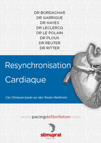 Resynchronisation Cardiaque