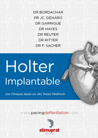 Holter implantable