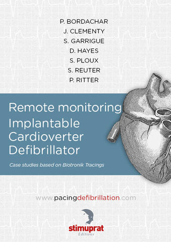 Remote monitoring Implantable Cardioverter Defibrillator