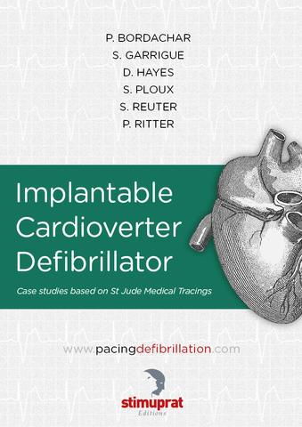 Implantable Cardioverter Defibrillator
