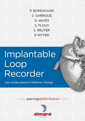 Implantable Loop Recorder