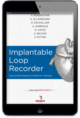Implantable Loop Recorder