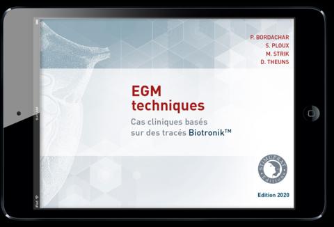 EGM techniques