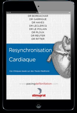 Resynchronisation Cardiaque ebook
