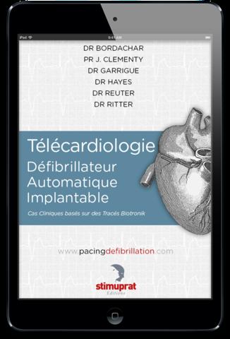 Télécardiologie Défibrillateur Automatique Implantable