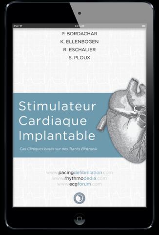 Stimulateur cardiaque implantable ebook