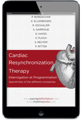 S.E.D.D. Cardiac Resynchronization Therapy ebook
