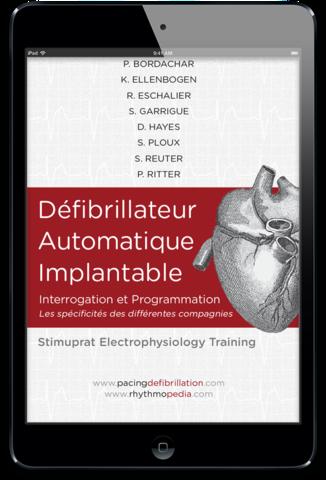 SET - Défibrillateur Automatique Implantable