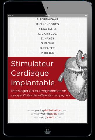 Stimulateur cardiaque implantable