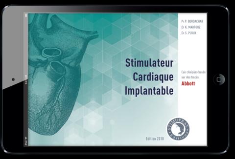 Stimulateur Cardiaque Implantable Abbott