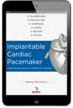 Implantable Cardiac Pacemaker