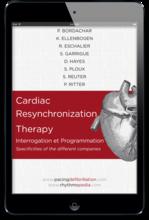 S.E.D.D. Cardiac Resynchronization Therapy ebook