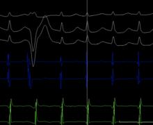 Une tachycardie typique