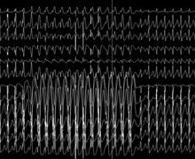 A narrow QRS tachycardia
