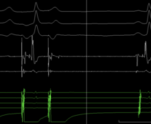 Syncope and LBBB