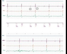 Loss of biventricular capture