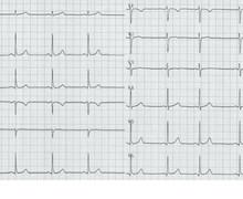 ECG normal (ECN) 1