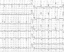 Cœur pulmonaire chronique (ECN)