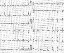 Embolie pulmonaire (ECN)