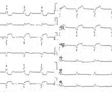 Infarctus inférieur avec extension au ventricule droit (ECN)