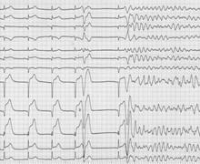 Fibrillation ventriculaire ischémique (ECN)
