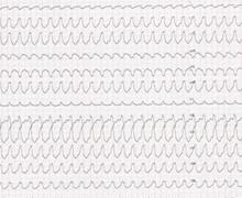 Tachycardie ventriculaire et concordance positive (ECN)