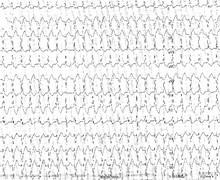 Tachycardie ventriculaire, complexes de capture et de fusion (ECN)