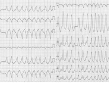 Fibrillation auriculaire et voie accessoire (ECN)