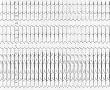 Tachycardie jonctionnelle sur voie accessoire (ECN)