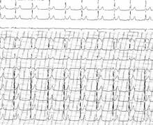 Voie accessoire, faisceau de Kent et syndrome de Wolff-Parkinson-White (ECN)