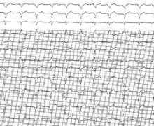 Stimulation biventriculaire (ECN)