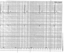 Dysfonction sinusale  (ECN)
