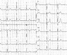 Insuffisance aortique et hypertrophie ventriculaire gauche (ECN)