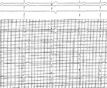 Atrial fibrillation and atrioventricular conduction disorder