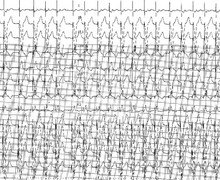Absence of fallback during atrial arrhythmia