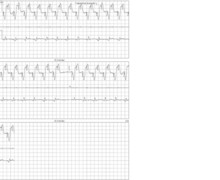 Pacemaker-mediated tachycardia