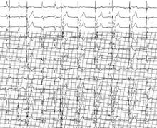 Ventricular sensing defects
