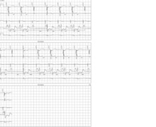 Loss of ventricular capture