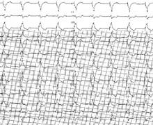 Perte de capture ventriculaire