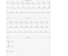 Reduction of ventricular pacing percentage