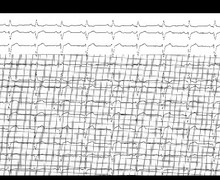 Non-specific intraventricular conduction delay