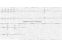 Syncopes chez un patient avec bloc de branche droit et hémibloc antérieur gauche