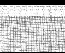 Bloc de branche droit et hypertrophie ventriculaire droite