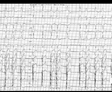 Rate-dependent left bundle branch block