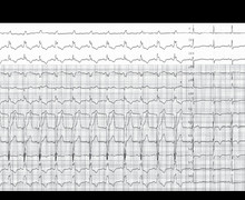 Painful left bundle branch block