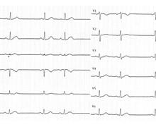 Diagnostic différentiel d'une dysfonction sinusale