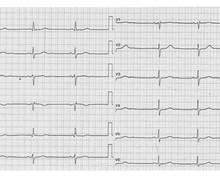Bradycardie sinusale