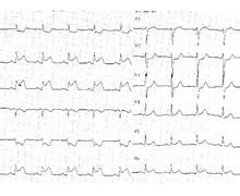 Bloc auriculo-ventriculaire complet sur infarctus du myocarde