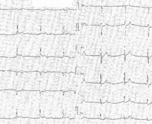 Complete atrioventricular block due to myocardial infarction